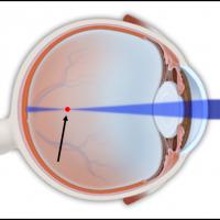 תמונה 1. בקוצר ראייה מתמקדות קרני האור בנקודה הנמצאת לפני הרשתית (מצויינת באדום).
