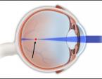 קוצר ראייה 1