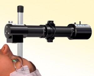 תמונה 2. טיפול בקרוס לינקינג של הקרנית.