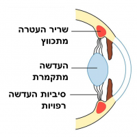 תמונה 2. התכווצות שריר העטרה מרפה את הסיביות וגורמת להתקמרות העדשה.