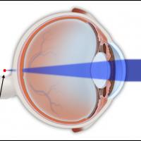 תמונה 1. ברוחק ראייה קרני האור מתמקדות מאחורי הרשתית.