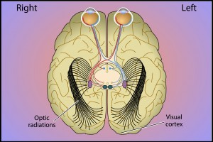 תמונה 7. סיבי ה- Optic Radiation מעבירים מידע מה- LGN לקליפת המוח הראייתית.