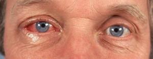 """תמונה 2. דלקת ויראלית מתחילה בעין אחת ועוברת אח""""כ לעין השניה."""