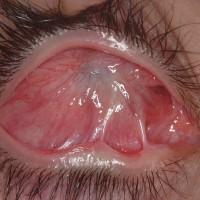 תמונה 4. הצטלקות של משטח העין לאחר כווית חומצה קשה.
