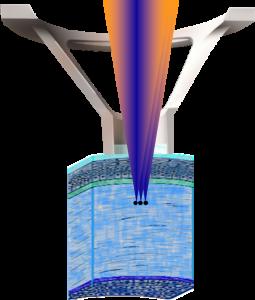 תמונה 4. בעזרת דיסקת זכוכית נוצרת השטחה של פני הקרנית, וכך בועיות הגז נוצרות במרחק שווה מפני הקרנית.