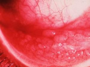 תמונה 3. דלקת ויראלית המאופיינת בפוליקולים המופיעים בפורניקס התחתון.