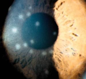 תמונהב 4. תסנינים בקרנית בדלקת ויראלית של אדנו-וירוס.