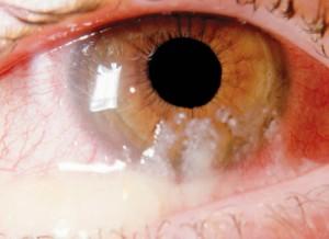 תמונה 1. הפרשה סמיכה בדלקת חיידקית של הלחמית.