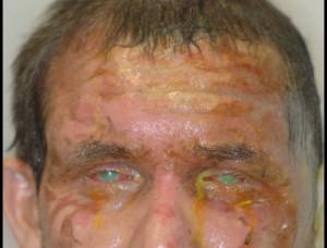 תמונה 1. כווית בסיס קשה של עור הפנים ושתי העיניים.