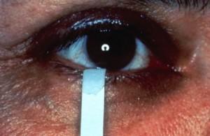 תמונה 6. מבחן שירמר לאבחנת עין יבשה.
