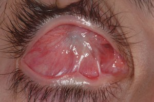 תמונה 4. בשלב הריפוי המאוחר לאחר כוויה קשה מצופה הקרנית כולה ברקמה צלקתית.