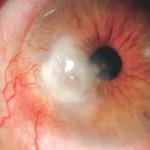 תמונה 1 - צלקת גדולה עם כלי דם בקרנית