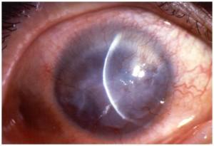 תמונה 1. כשל לימבלי מתאפיין בצמיחת כלי דם והצטלקות של הקרנית.