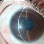 תמונה 2 - לאחר ניתוח בו הוסרה רקמת הצלקת, נבנה פורניקס עליון ותחתון, והושתלו תאי אב שמקורם בעין השניה