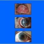 סרטון - ניתוח שחזור משטח העין לאחר כוויה כימית