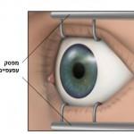 תמונה 2. מפסק העפעפיים מאפשר את פתיחת העין במהלך הניתוח