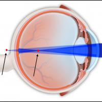 תמונה 1. מישורי שבירה שונים גורמים למוקדים שונים.