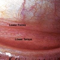 תמונה 1. הפורניקס הוא השקע שבין העפעף וגלגל העין.