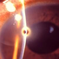 תמונה 3. גוף זר (שבב מתכתי) קטן על פני הקרנית.