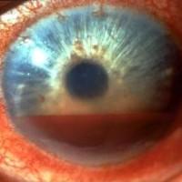 תמונה 5.  דימום ללשכה הקדמית של העין (בין הקרנית והקשתית) לאחר חבלה קהה.