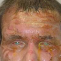 תמונה 2. כוויה מחומר בסיסי שניתז על פניו של פועל שלא חבש משקפי מגן.
