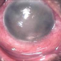 תמונה 4 - בצקת של הקרנית המלווה בדלקת כרונית של הלחמית.