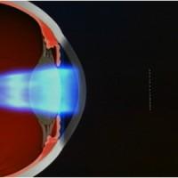 תמונה 3. גל-האור (קדמת הגל) מוחזר מהעין, ונקלט דרך מערך עדשות זעירות הנמצאת באברומטר