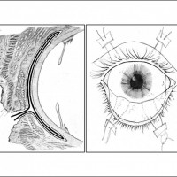 תמונה 4 - השתלת קרום השפיר בכוויה. משמאל - חתך צד. מימין - מבט קדמי.