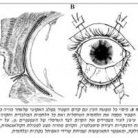 תמונה מהמאמר על השתלת קרום השפיר
