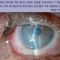 תמונה מהמאמר המדגימה כוויה כימית קשה של משטח העין.