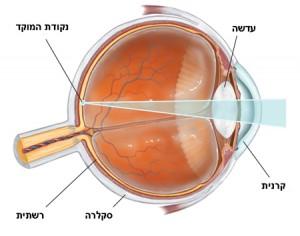 תמונה 3. שבירת קרני האור בעין מתרחשת בקרנית ובעדשה.