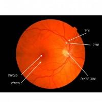 תמונה 1. קרקעית העין. ניתן לראות את ראש עצב הראייה, המקולה וכלי הדם של הרשתית.