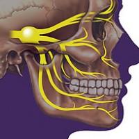 תמונה 1 - סיבי העצב החמישי דרכם מגיע הנגיף לעין