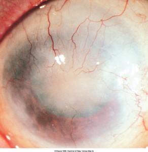 תמונה 3. צלקת גדולה עם כלי דם לאחר טראכומה.