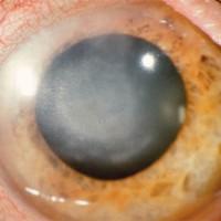מהן הצורות של הרפס בעין?