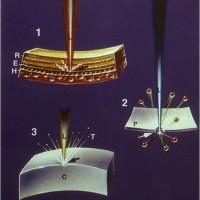 """תמונה 3. האסימר לייזר מבצע אידוי של הרקמה ע""""י פירוק קשרים בין אטומים סמוכים, וברמה גבוהה מאוד של דיוק."""