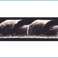"""תמונה 6. חתכים בשערה של אדם שנעשו ע""""י האקסימר לייזר."""