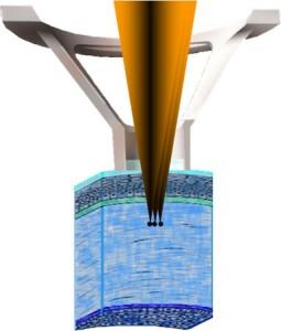 תמונה 6. ה - femtosecond laser מבצע חיתוך שכבתי בקרנית