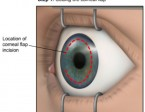 lasik-flap-location