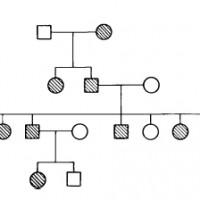 מהן הסיבות להתפתחות קרטוקונוס?