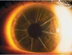תמונה 2. ניתוח חתכים רדיאליים  בקרנית - Raial Keratotomy