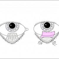 תמונה 6 - השתלת קרום השפיר לתיקון סימבלפרון. מימין - סימבלפרון. שמאל - קרום השפיר (ורוד) לאחר ההשתלה.